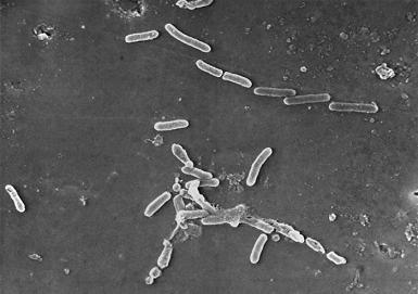 Pseudomonas aeruginosa - microbewiki