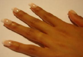 Different Conditions Of The Fingernails