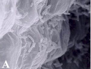 Acetobacter Microbewiki