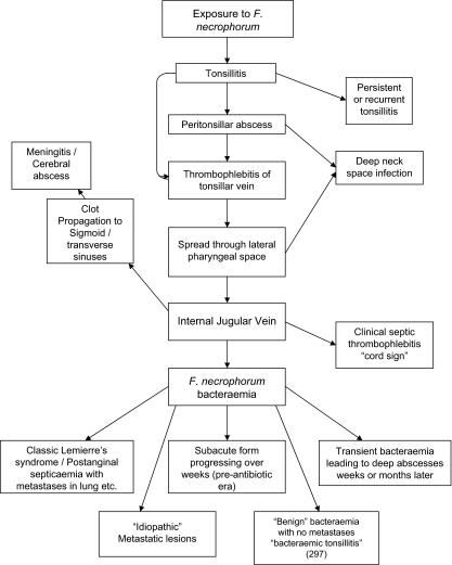 Lemierre's Syndrome - microbewiki
