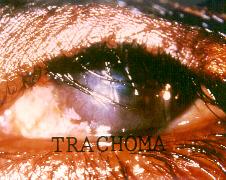 external image Trachoma.jpg