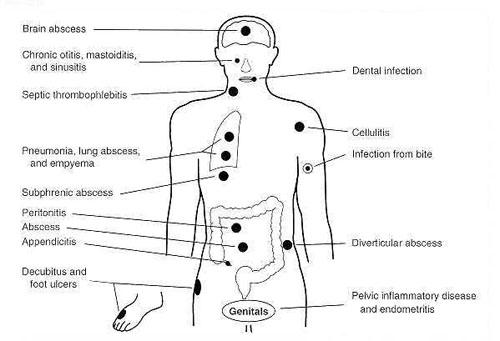 Bacteroides - microbewiki