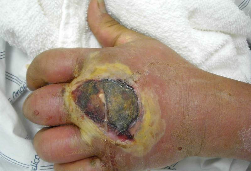 Figure 2 infection of the hand caused by methicillin resistant