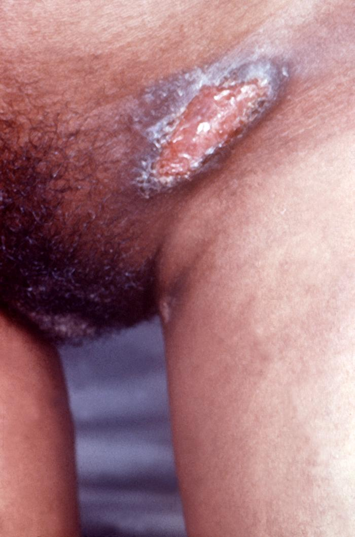 Sores On The Genitals