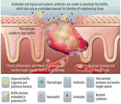 Microbial Biofilm Inhibits Wound Healing Microbewiki