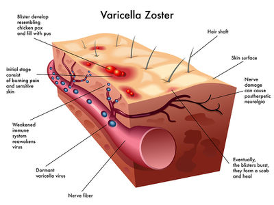 Chickenpox is a skin manifestation of varicella zoster virus, one of eight different forms of the herpes family 3