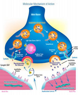 Clostridium botulinum neu2011  microbewiki