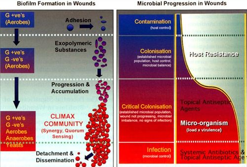 Microbial biofilm inhibits wound healing - microbewiki