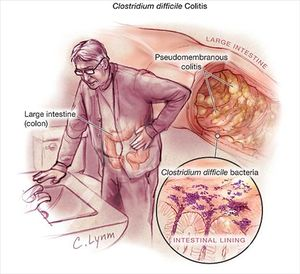 C. diff can effect anyone