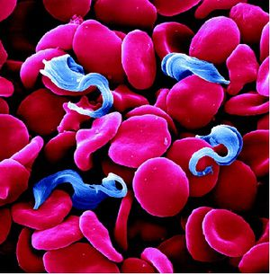Trypanosoma Brucei Gambiense Disease African Trypanosomiasi...