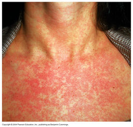 Good non specific viral rash in adults brilliant