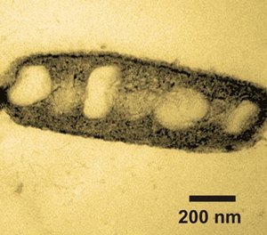 Bioremediation  microbewiki