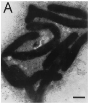 Flavobacterium columnare