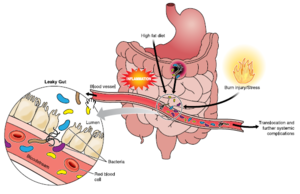 Gut Microbiota In Relation To Colorectal Cancer Microbewiki