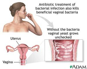 Natural Cure For Bacterial Vag