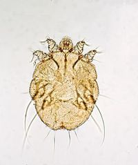 Scabies Stock Images, Royalty-Free Images & Vectors ...