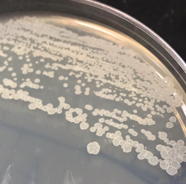 Streptomyces Unknown pic.png